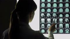Neurosurgeon analyzing brain x-ray, blood vessels problems, incurable illness - stock footage