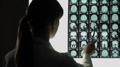 Neurosurgeon analyzing brain x-ray, blood vessels problems, incurable illness Stock Footage