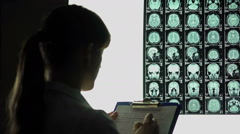 Female neurologist looking thoughtfully at brain x-ray, writing down diagnosis Stock Footage