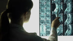 Female doctor looking at roentgen image, neck X-ray, diagnosing patient Stock Footage