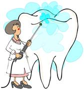 Female dentist cleaning a tooth - stock illustration
