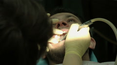 Treatment of caries. Man visits the dentist. Stock Footage