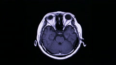 MRI brain scan on black background Stock Footage