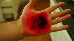 burned hand CGI burn 3rd degree - stock footage