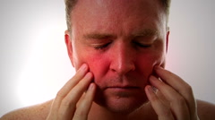 Man Suffering With Sinus Infection Pain Stock Footage