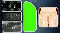 Vagina - Computer Scanning - Human detector - World - grey 03 - stock footage