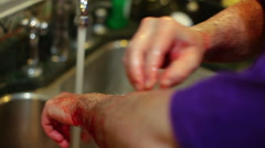 Cleaning blood off hands and arms Stock Footage