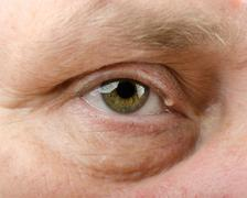 Chalazion of right eyelid Stock Photos