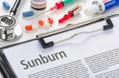 The diagnosis Sunburn written on a clipboard - stock photo