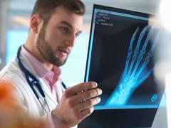 Junior doctor examining x-ray of fractured hand in hospital Stock Photos
