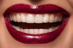 Sexy female lips, snow-white smile Stock Photos