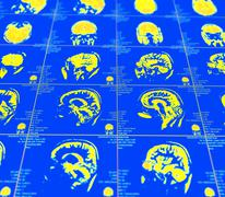 Magnetic resonance imaging of the brain Stock Photos