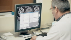 4k, Doctor looking at MRI on a computer 1 Stock Footage