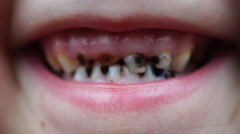 Footage caries on the teeth of the child Stock Footage