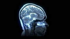 MRI brain scan - stock footage