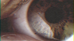 4k - Big eye closeup VHS effect with distortion Stock Footage