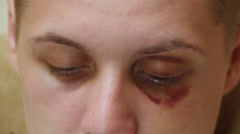 Face boy with a bruise on his eye Stock Footage
