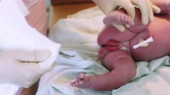 Nurse in gloves put diaper on crying newborn baby lay on table after birth - stock footage