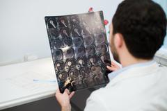 Young male physician reading and reviewing a MRI brain scan Stock Photos