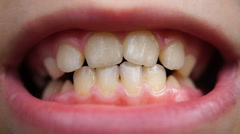 Footage caries on the teeth of the child close up Stock Footage