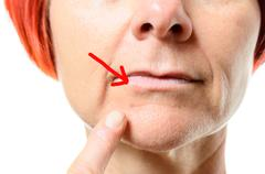 Woman pointing to blemish on chin - stock photo