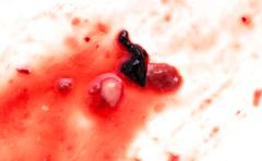 red blood on white background - stock photo