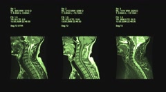 4k set of three neck views of MRI scan. Loopable. Green, Medical exam. Stock Footage
