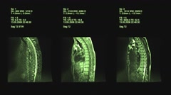 4k set of spine mri, Computed Tomography Stock Footage