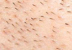 the bristles on the skin. macro - stock photo