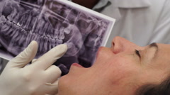 Dentist Showing Xray to Patient Closeup - stock footage