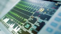 ECG monitor Stock Footage