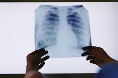 Holding x-ray Stock Photos
