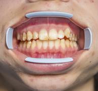 Dental fluorosis - stock photo