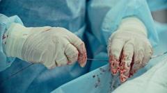 Cardiac Surgery - stock footage