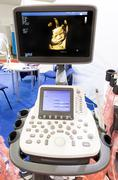 Advance ultrasound machine - stock photo