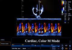 Colourful ultrasound monitor image. Cardiac Stock Photos