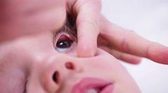 Little Boy Getting Eye Drops Stock Footage