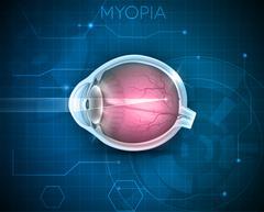 Myopia - stock illustration