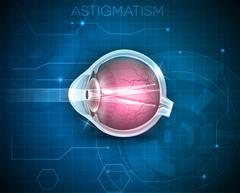 Astigmatism Stock Illustration