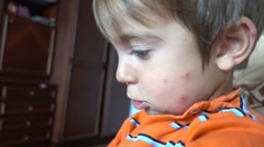 Bite wounds on cheek of child Stock Footage