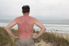 Sunburned male back red back at the beach Stock Photos