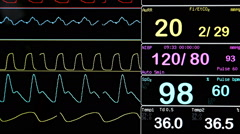 Colourful ultrasound monitor image.  Pulse Stock Footage