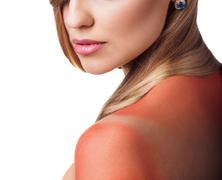 Sunburn female shoulder - stock photo