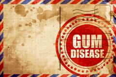 gum disease - stock illustration