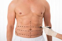Close-up Of Person Hands Drawing Perforation Lines On Stomach With Marker Stock Photos