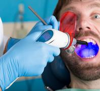 Doctor examines the oral cavity on tooth decay. Caries protection. Tooth decay - stock photo