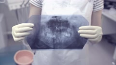 The chest x-ray of your jaw and teeth in the doctor's hands Stock Footage