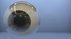 Onchocerciasis disease filarial worm located on eye. Stock Footage