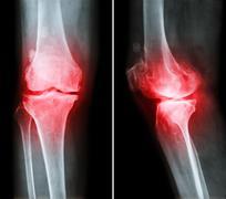 Osteoarthritis knee .  film x-ray knee ( anterior - posterior and lateral vie Stock Photos