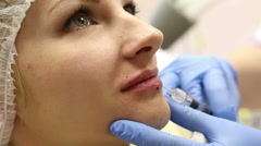 Injection gel for lip augmentation at the girl. Stock Footage